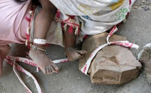 At Ahmedabad Construction Site, Parents Tie Toddler To Rock While They Work