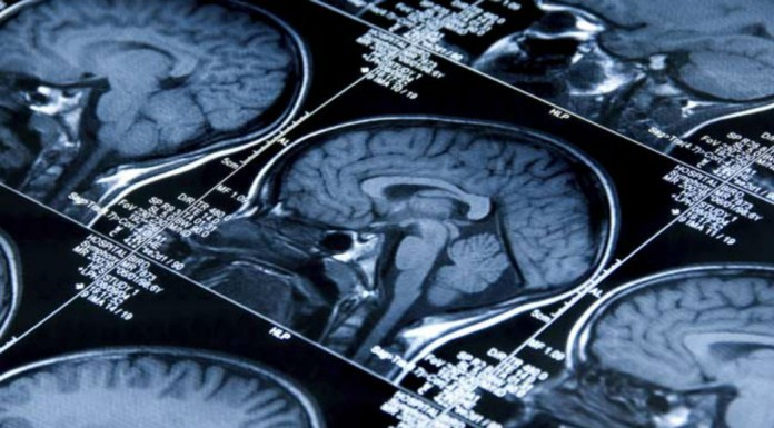 Long-Term Memory Test May Help Early Diagnosis Of Alzheimer's Disease