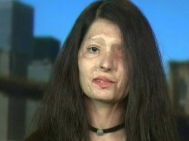 Life Not Over After Acid Attack: Survivor Who Walked The Ramp In New York