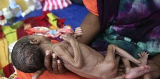 5 in 6 Infants Undernourished In Developing Countries: UNICEF