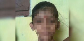 Experts Speak On Patna Teen Girl's Fight For TB Drug
