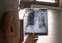 Accurate Diagnosis Is The First Step To Address India's TB Crisis