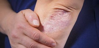 Psoriasis Likely To Recur If Patients Have Anxiety, Depression: Study