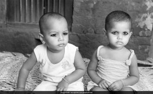 Childhood Stunting In India Reduces By Nearly 10% In Last Decade: Survey