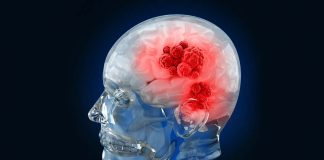 Combination Therapy Boosts Survival Of Brain Cancer Patients: Study