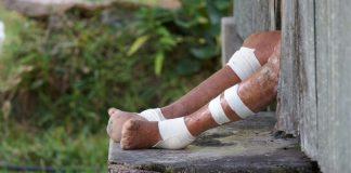 India, Neighbours Push For Leprosy, Kala-Azar Elimination By 2020