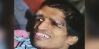 Blinded, Deformed, Thousands Paying For Endosulfan In Karnataka Say 'Enough'