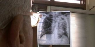 Novel Mechanism May Help Cure Tuberculosis