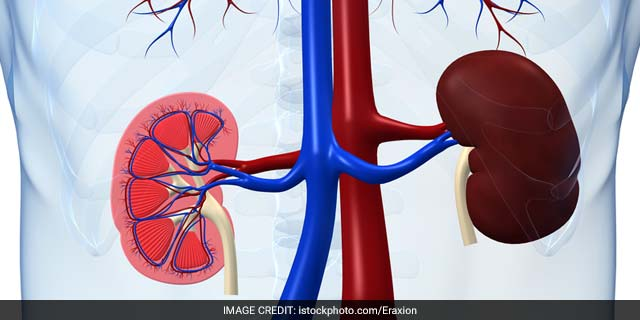 Worth It? A Faster Transplant But A Kidney With Hepatitis C