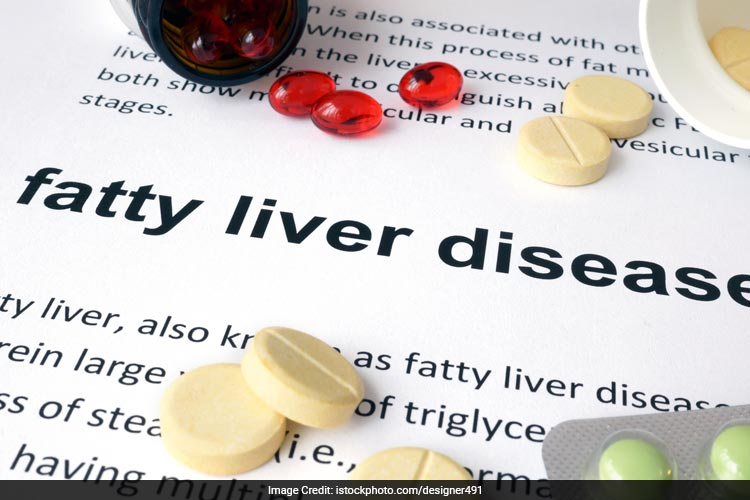 Avoid processed and junk food to maintain a healthy liver