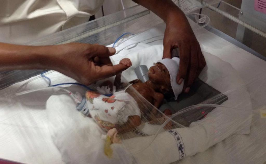 This Preemie Weighed As Much As A Cellphone Then A Hospital