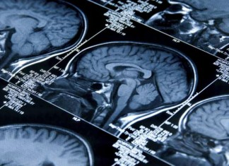 Over 2,500 Indian Children Suffer From Brain Tumour Every Year: Experts
