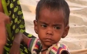 Malnourishment Rampant In Madhya Pradesh Village, Kids Battle For Life