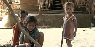 Kids Dying As Japanese Encephalitis Spreads Widely In Odisha's Malkangiri