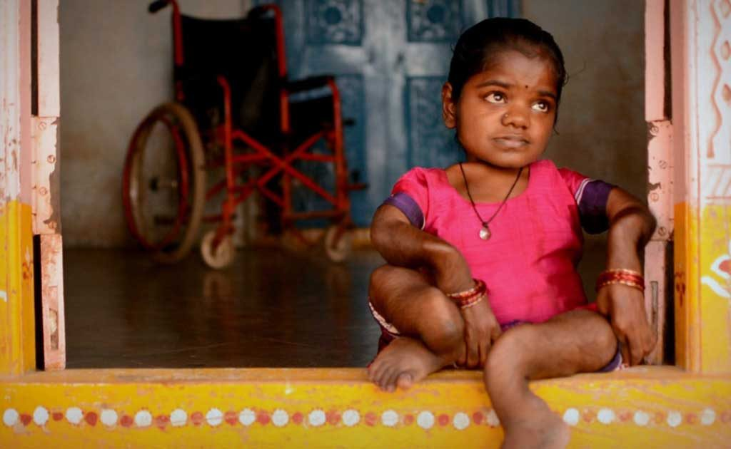 How Fluorosis Is Crippling India And Needs Urgent ...