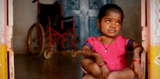 How Fluorosis Is Crippling India And Needs Urgent Attention