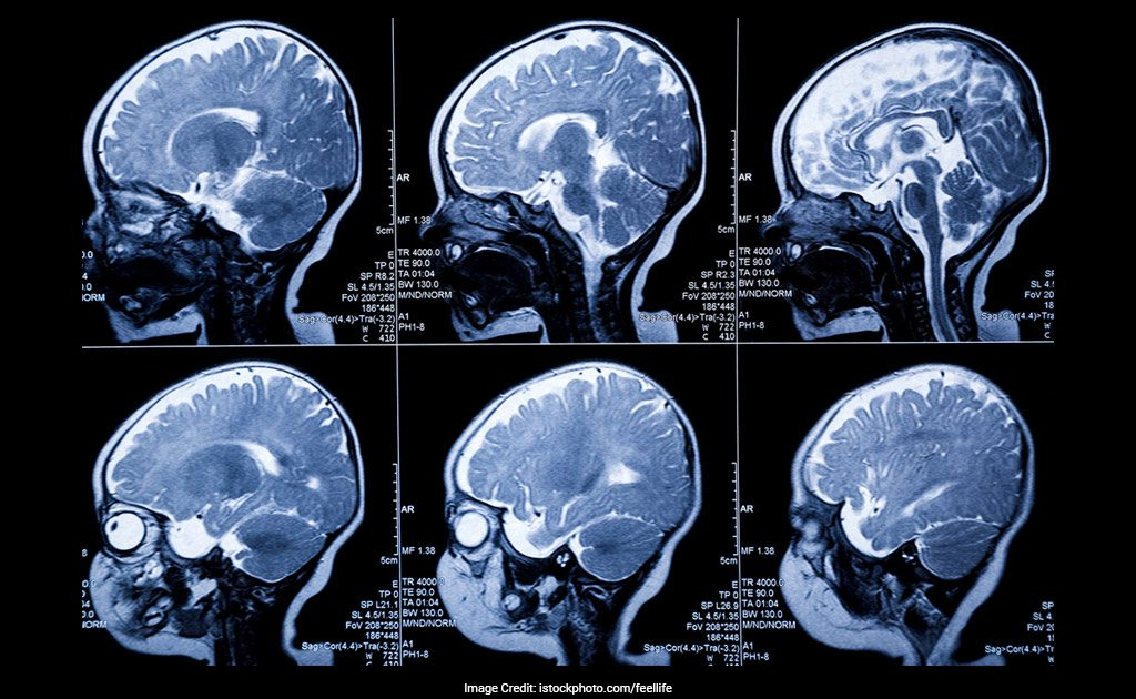 Mris Predict Which High Risk Babies >> Mri Scans Can Predict Babies At Risk Of Autism Study