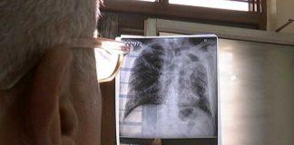 Novel Mechanism May Help Cure Tuberculosis