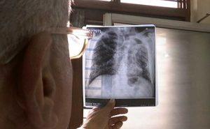 In Mumbai, TB Deaths Spark Data Dispute