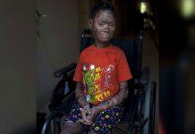 Madhya Pradesh Girl Who Sheds Her Skin Every 6 Weeks Gets Free Treatment In Spain
