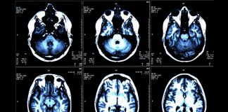 MRI Brain Scans May Help Identify Multiple Sclerosis Risk Early In Children: Study
