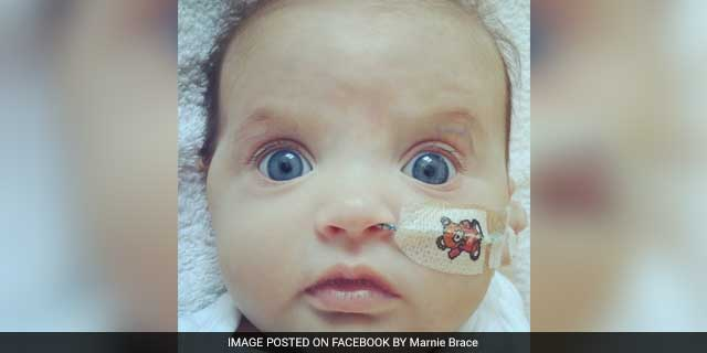 Marnie Brace, A 20-Weeks-Old Baby, Needs A Heart Transplant