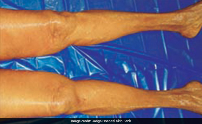 An A-Z Guide To Skin Donation And Transplantation In India