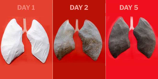 Demonstrating The Impact Of Air Pollution On Health, Lungs Installed In Lucknow Turn Jet-Black In Five Days