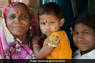 Swasth India: Malnutrition Causes 45 Per Cent Child Deaths In India