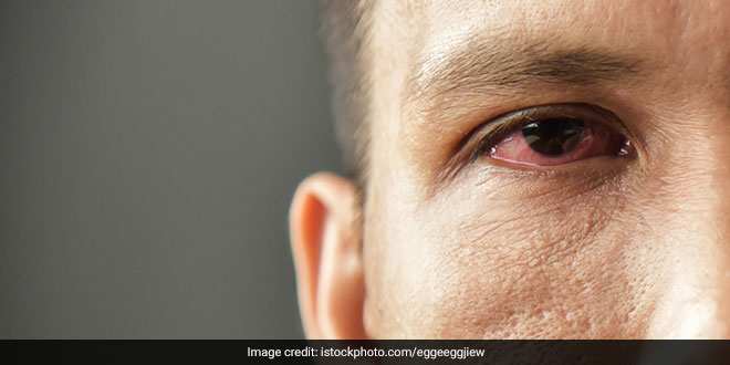 Can Air Pollution Make You Blind?