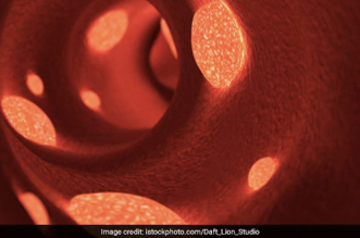 COVID-19 Not Just Lung Disease, Can Also Cause Dangerous Blood Clots: Experts